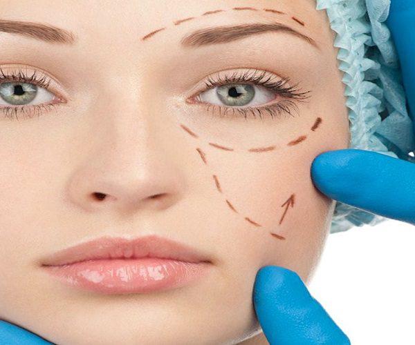 cosmetische ingreep